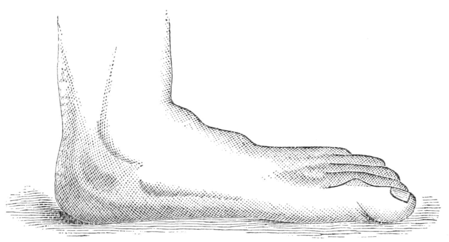psm_v24_d672_splay_or_flat_foot