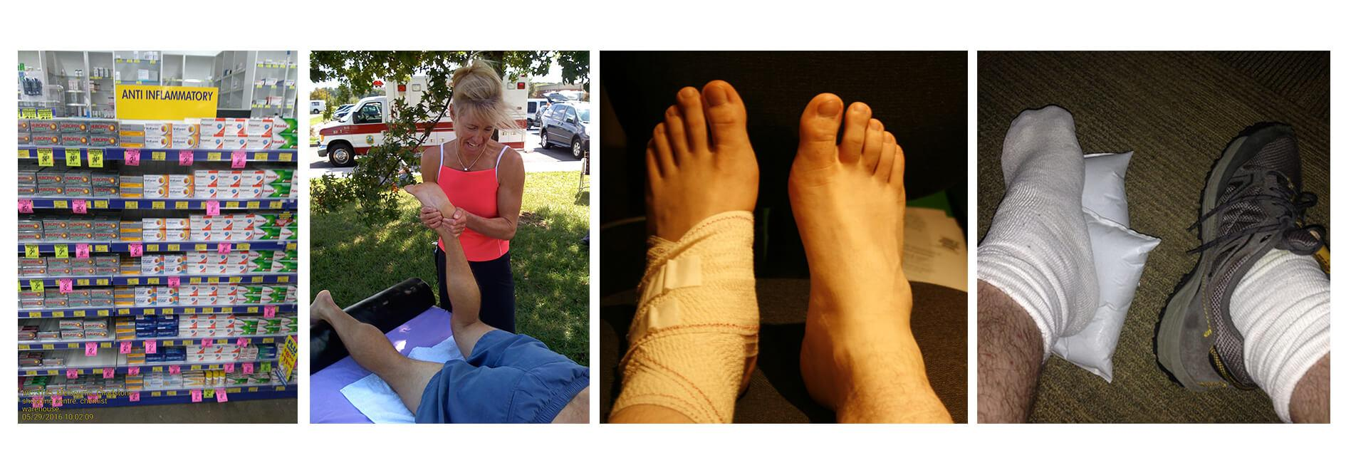 Plantar-Fasciitis-Treatment