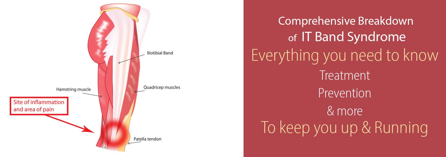 IT-Band-Syndrome-everything-you-need-to-know-the-complete-runners-guide