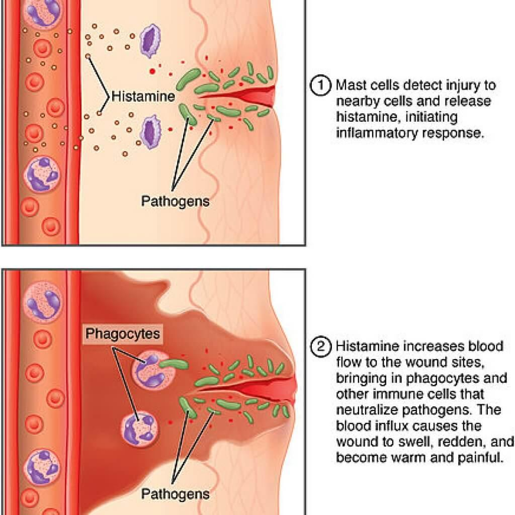 Inflammation-what-exactly-is-inflammation-best-anti-inflammatory-foods