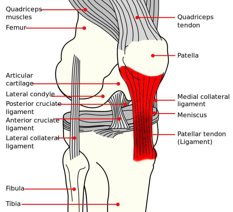 Patellar-Tendonitis-Affected-Area
