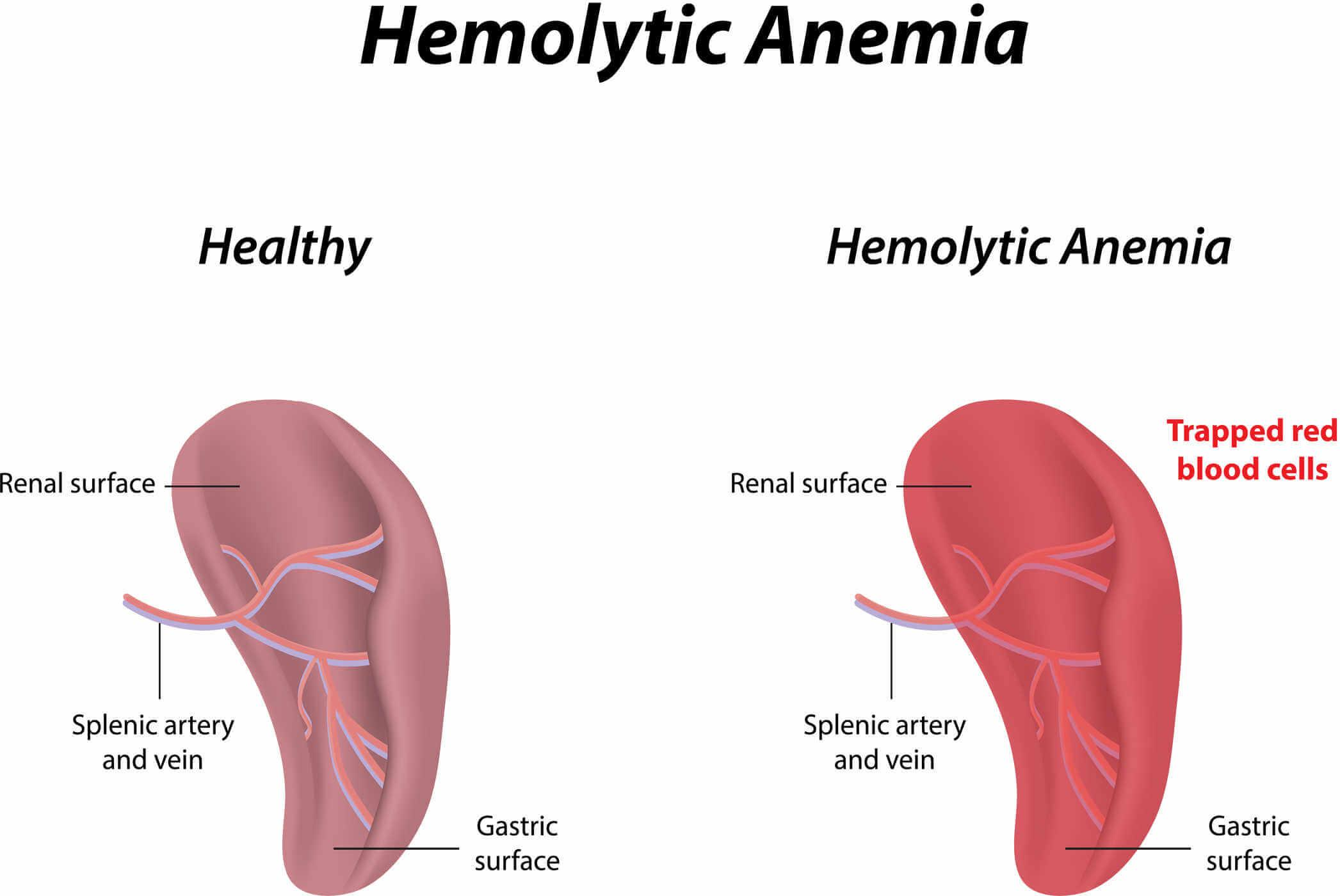 Hemolytic-Anemia-from-Footstrikes-what-is-anemia-comparison