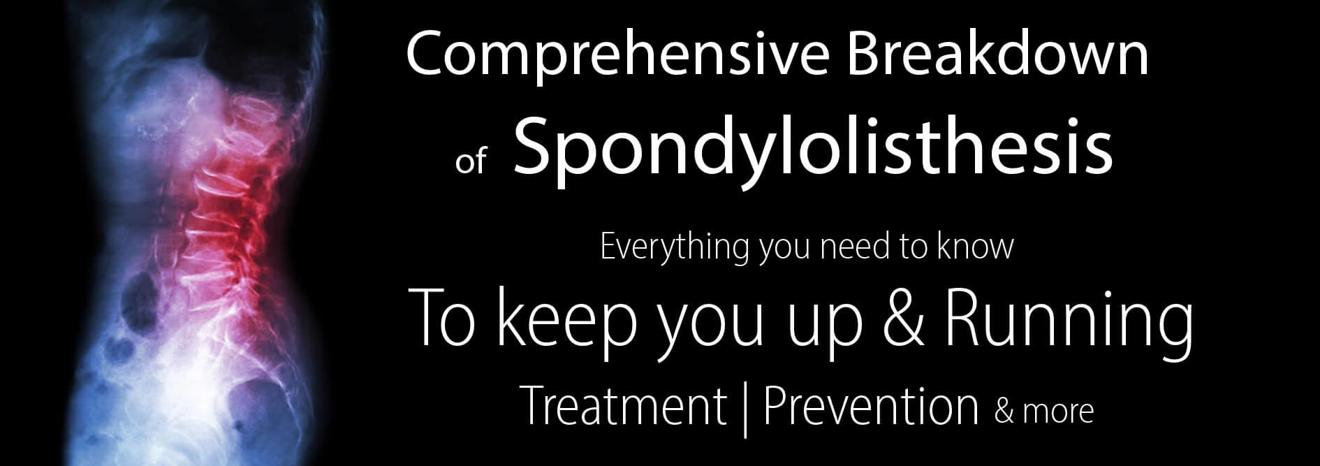 Spondylolisthesis-The Runners-Complete-Guide