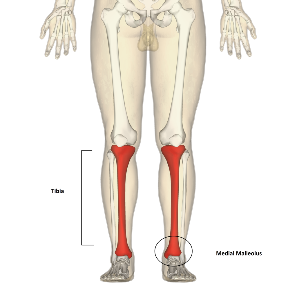 Stress Fractures - Diagnosis, Treatment & Prevention | Runnerclick
