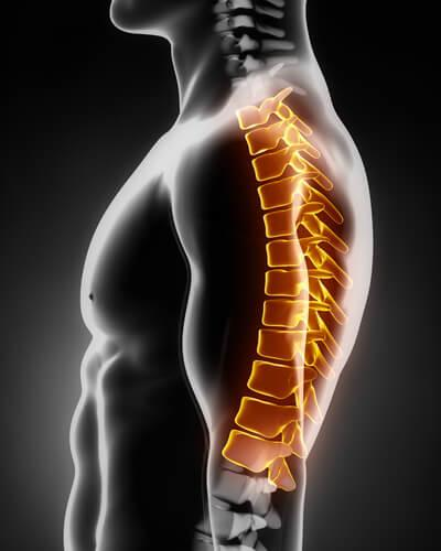 Herniated-Disc-thoracic-Spine