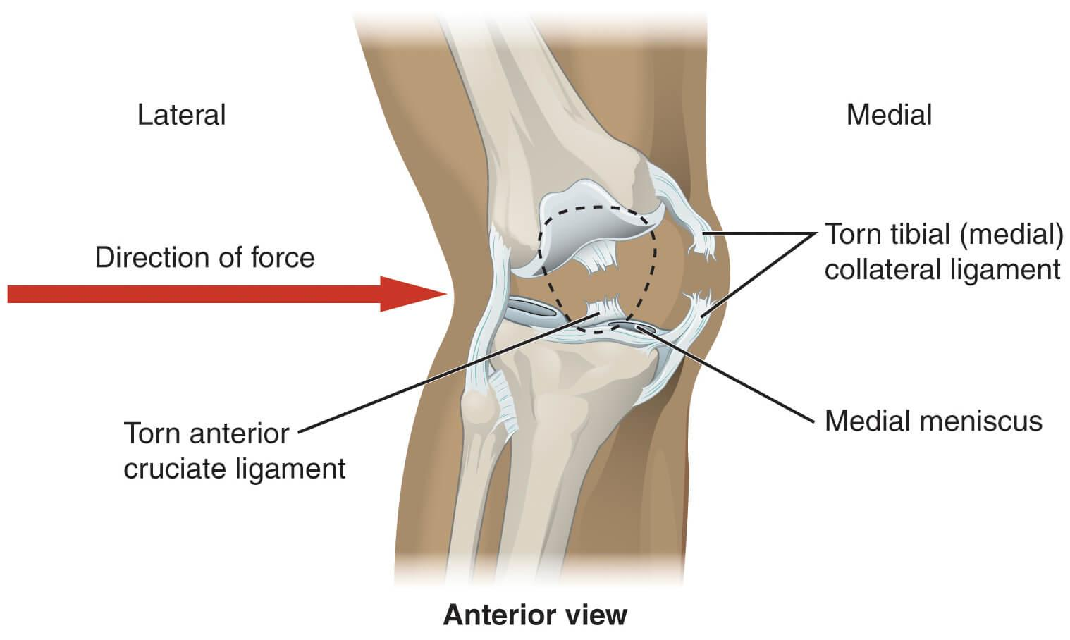 mcl runner s sprain defined causes treatment and prevention