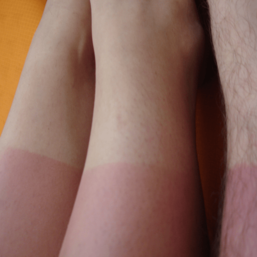 Running and sunburn: What you need to know.