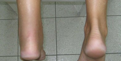 An injury article for runners on Achilles Tendinitis