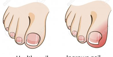 An in depth and comprehensive Runner's Guide Ingrown Nail