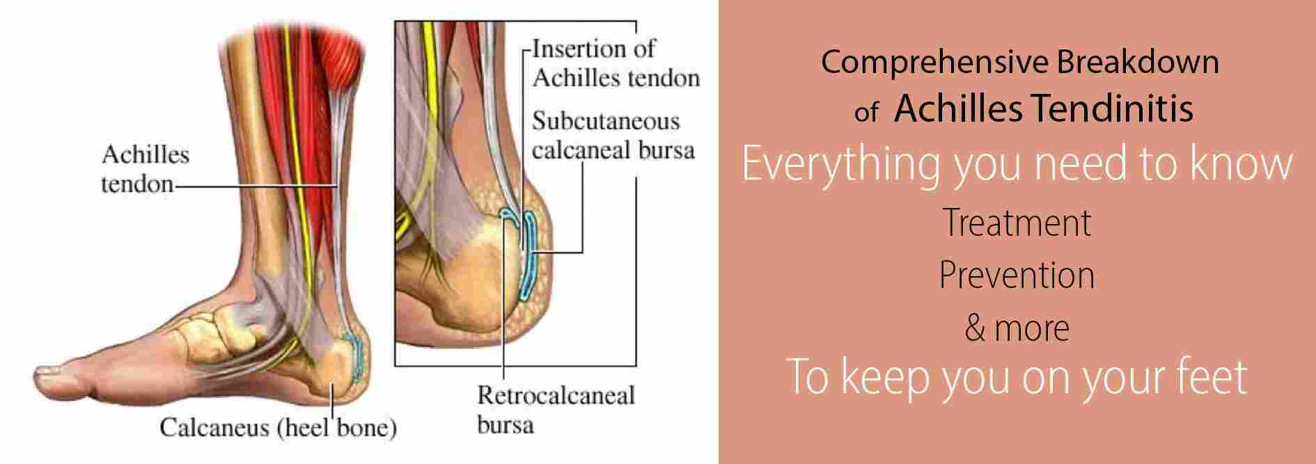 achilles tendonitis the complete guide to causes treatments