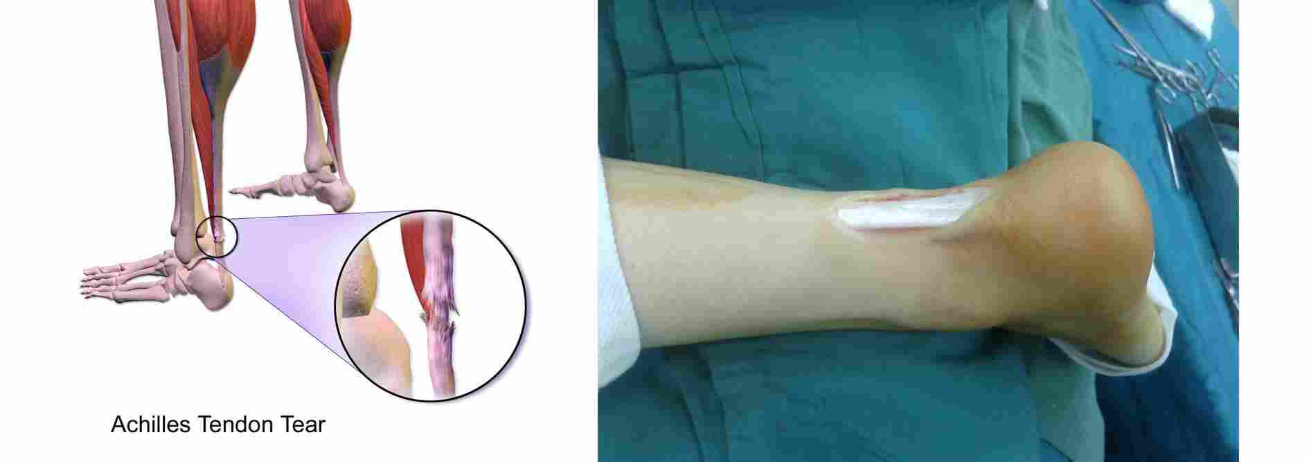 Achilles-tendon-tear-surgery