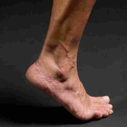Ankle-Sprains-The-Runners-guide-toe-walk