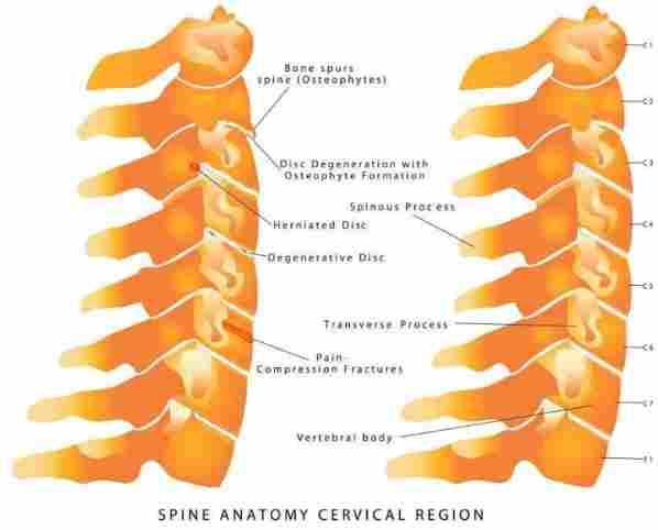 Herniated-Disc-Cervical Spine
