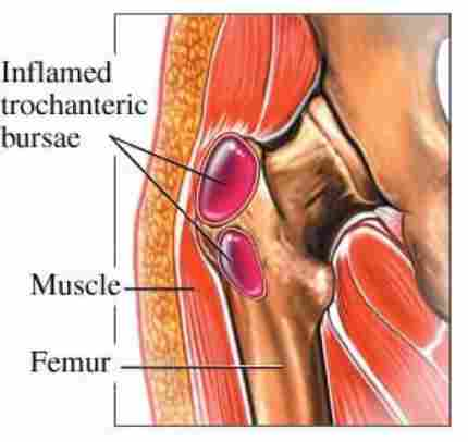 Hip trochanteric bursitis diagnose treatment prevent it hip bursitis bursae inflamed ccuart Image collections