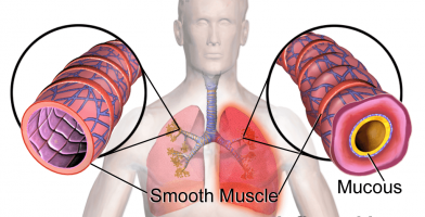What Are Pulmonary Embolisms and how to treat it