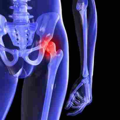 Labral-Tear-causes-symptoms-hip-pain-runner