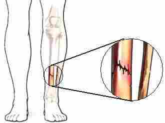 Runners-Guide-Stress-Fracture-where-do-stress-fractures-occur