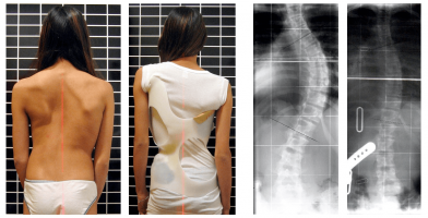 SMA Kyphosis and & Curvature of the Spine