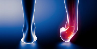 An in depth and comprehensive Runner's Guide to a Sprained Ankle