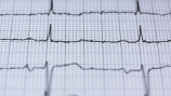 What you need to know about heart murmurs and running.