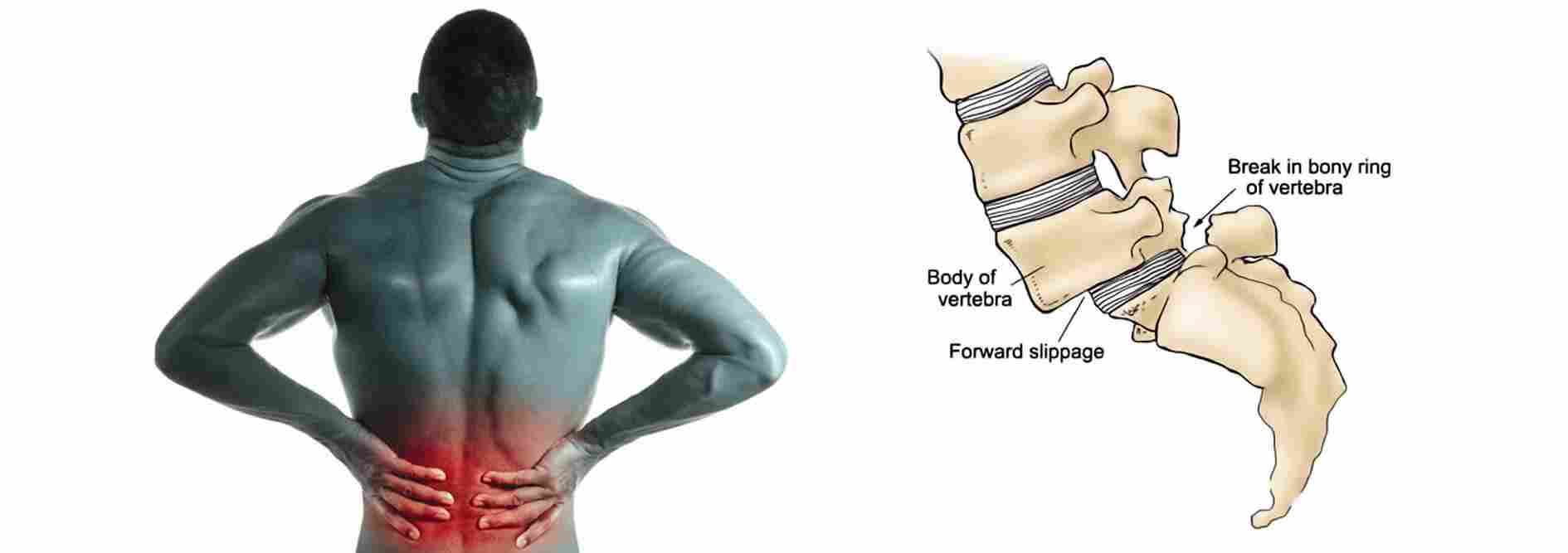 what-is-Spondylolisthesis