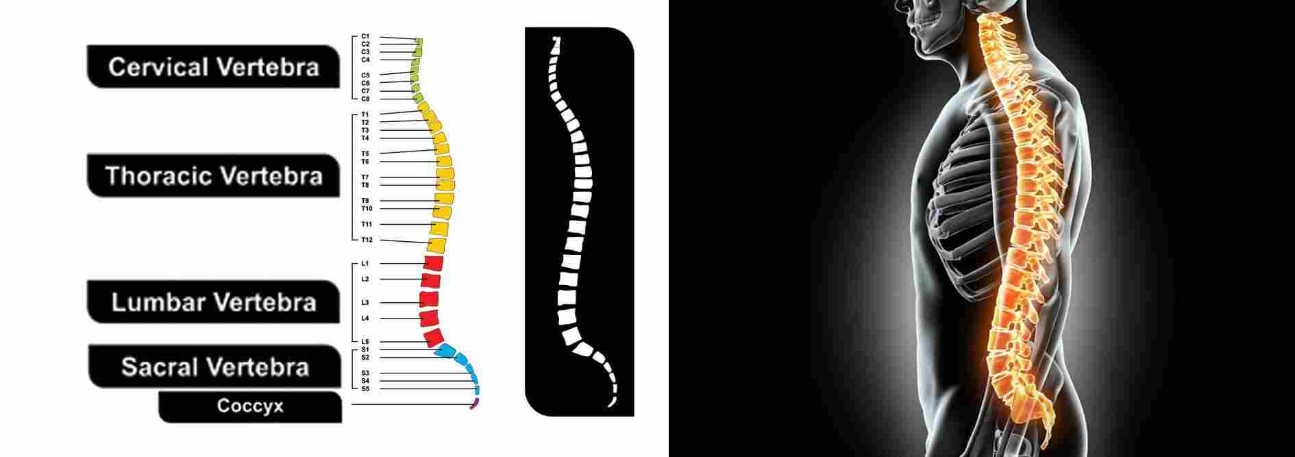 what-is-Spondylolisthesis-Spinal-Vertebral-Column